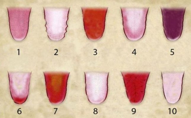 Hình ảnh trực quan các loại lưỡi